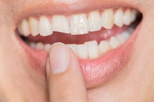 Răng mẻ gãy nhẹ chỉ mất 15 phút điều trị trám răng