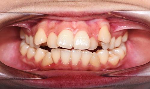 Răng mọc lệch lạc cũng nên niềng răng để khắc phục