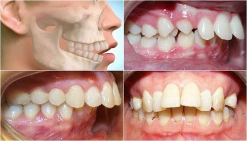 Răng mọc lệch lạc do xương hàm cũng không phù hợp điều trị bằng niềng răng