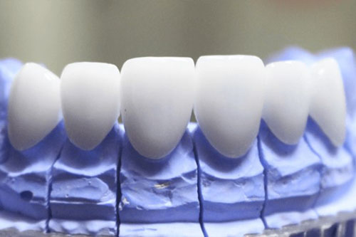 Răng sứ cao cấp có độ trong bóng nhất định
