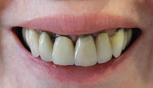 Răng sứ chất lượng kém gây hở chân răng
