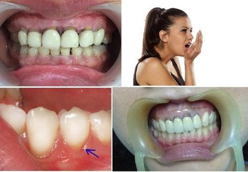 Răng sứ hở ảnh hưởng sức khỏe chung