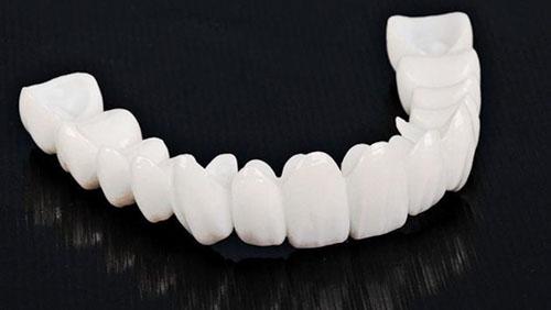 Răng sứ kim loại toàn sứ hơn 20 năm