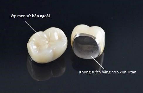Răng sứ kim loại tuổi thọ từ 3 - 5 năm