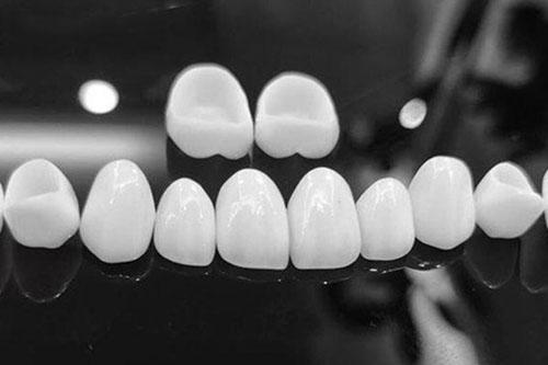 Răng sứ toàn sứ đạt thẩm mỹ cao