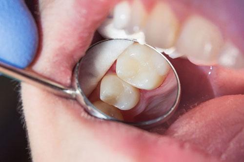 Rất khó nhận biết răng đã trám với Composite