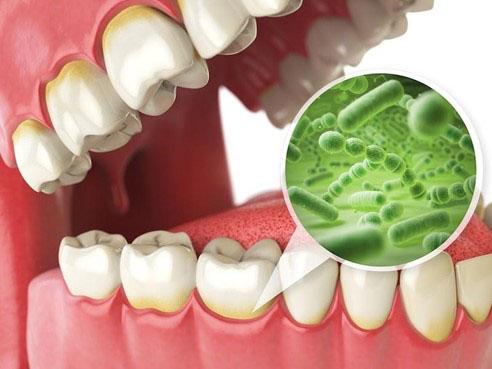 Sâu răng hình thành do vi khuẩn