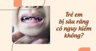 Sâu răng trẻ em: Nguyên nhân, cách điều trị và phòng ngừa hiệu quả