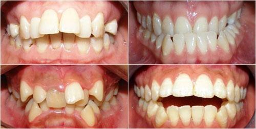 Sự thay đổi của khuôn mặt khi niềng phụ thuộc vào mức độ lệch lạc của răng