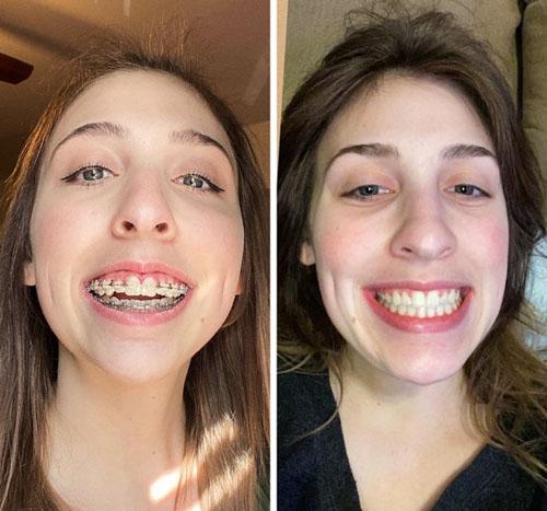 Sự thay đổi tích cực sau khi niềng răng hô