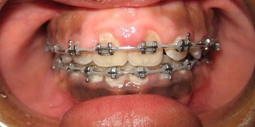 Sức khỏe răng miệng và thẩm mỹ suy giảm trầm trọng khi bị tụt lợi
