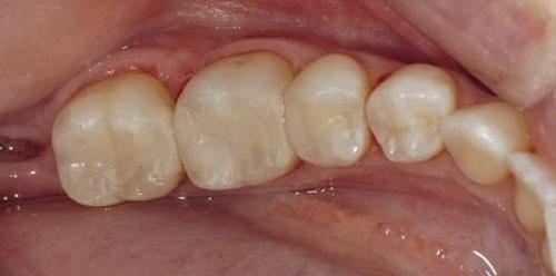 Tái khoáng men răng thực hiện tại nha khoa