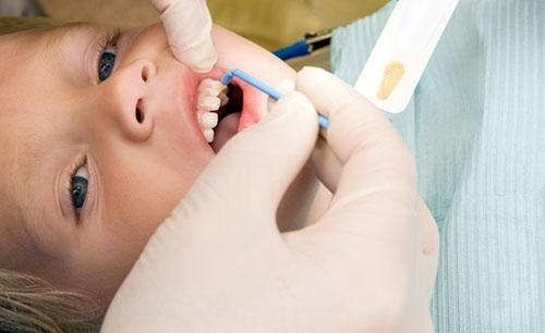Tái khoáng men răng trẻ em
