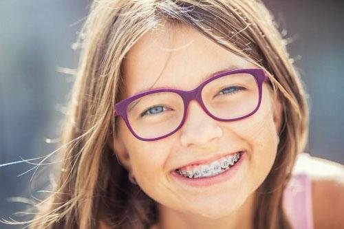 Thời điểm niềng răng tốt nhất cho trẻ là tứ 12 – 16 tuổi