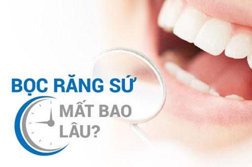 Thời gian bọc sứ cho răng hô mất bao lâu?