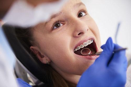 Thời gian niềng răng ở trẻ em sẽ nhanh hơn nhiều so với người trưởng thành