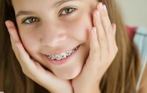 Thời gian niềng răng ở trẻ em sẽ nhanh hơn so với người trưởng thành
