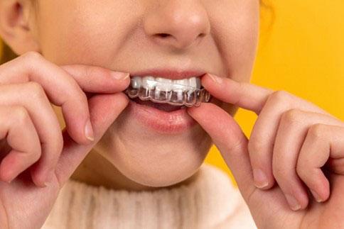 Thời gian niềng răng trong suốt có thể lâu hơn