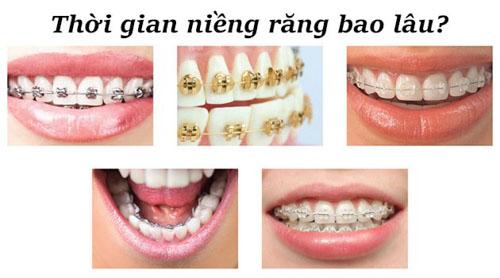 Thời gian niềng răng trung bình mất khoảng 18 – 24 tháng tùy từng tình trạng