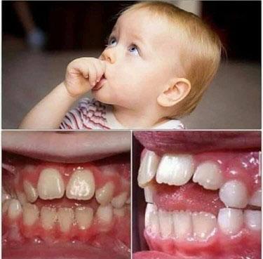 Thói quen mút tay lúc nhỏ có thể khiến cho răng bị hô