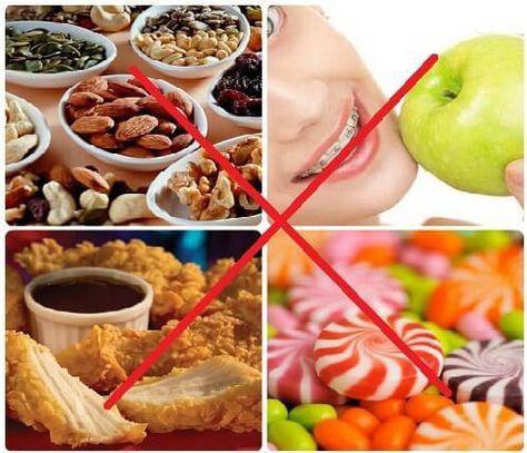 Thực phẩm nên kiêng cử sau khi hàn răng
