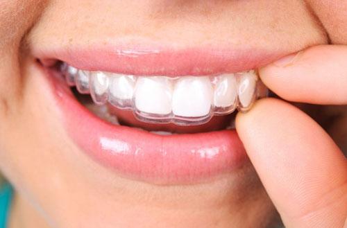 Tính thẩm mỹ cao khi niềng răng trong suốt