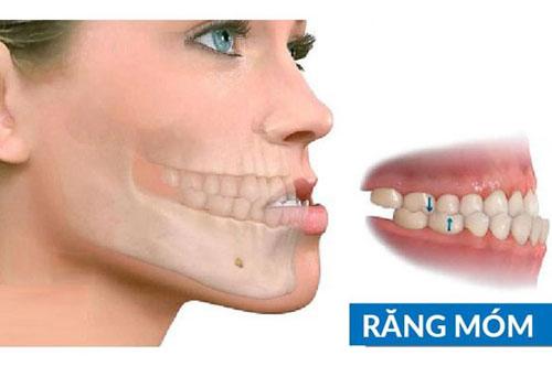 Tình trạng răng móm phổ biến