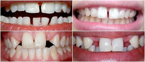 Tình trạng răng thưa hiện nay khá phổ biến