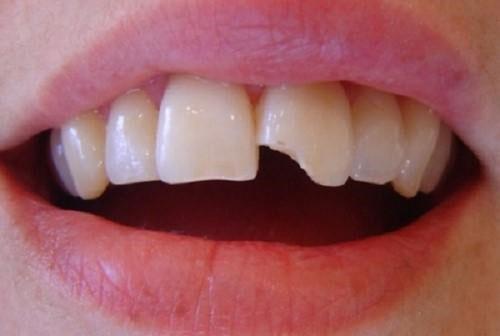 Tình trạng răng thực tế của bệnh nhân