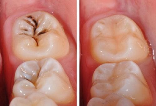 Trám Composite vị trí sâu răng