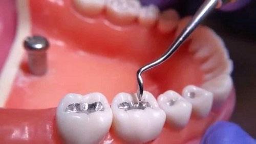 Trám răng Amalgam bền chắc