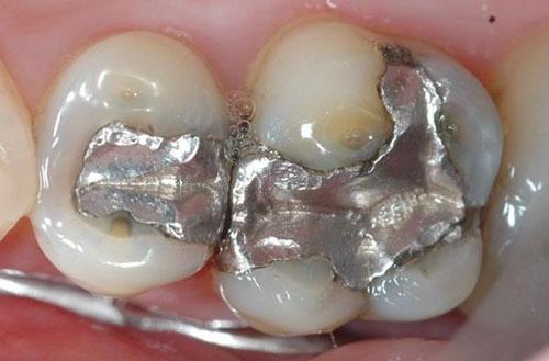Trám răng bằng chì có thật sự tốt?