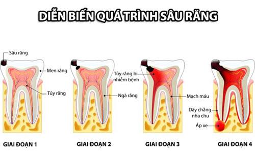 Trám răng chữa tủy phụ thuộc vào tình trạng thực tế
