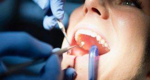 Trám răng composite nha khoa có tốt không?