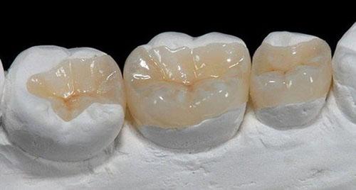 Trám răng gián tiếp qua miếng trám