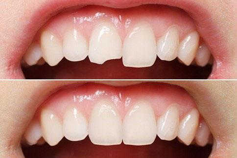Trám răng mẻ nhỏ