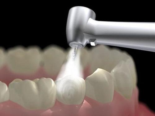 Trám răng nhanh chóng trong 1 lần hẹn