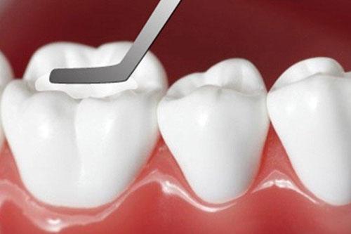 Trám răng phục hình răng nhanh chóng