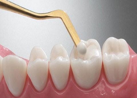 Trám răng trực tiếp lên răng