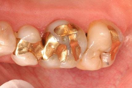 Trám răng vàng chi phí cao