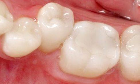 Trám răng vật liệu GIC