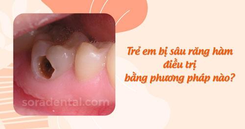Trẻ em bị sâu răng hàm điều trị bằng phương pháp nào?