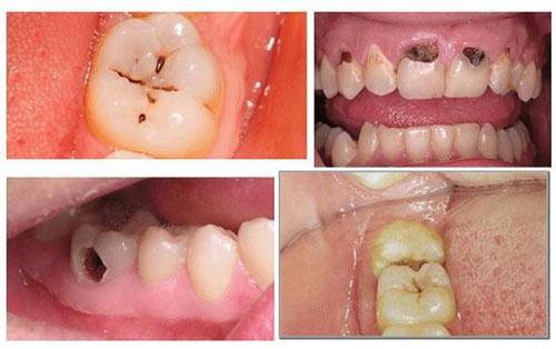 Triệu chứng của sâu răng