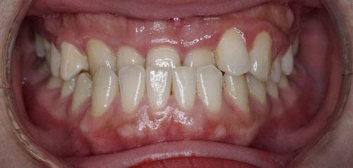 Trường hợp răng móm có thể bọc sứ
