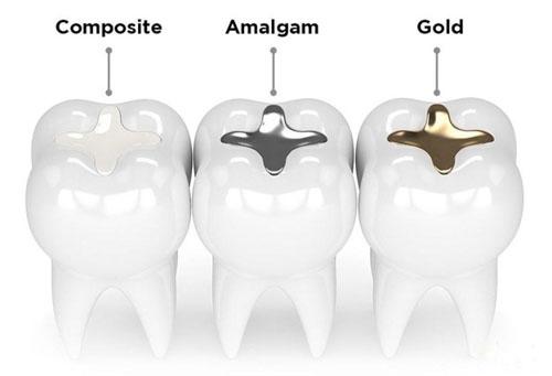 Vật liệu trám răng thường dùng tại nha khoa