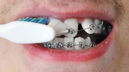 Vệ sinh răng miệng sai cách cũng là yếu tố khiến răng bị ê buốt, đau nhức