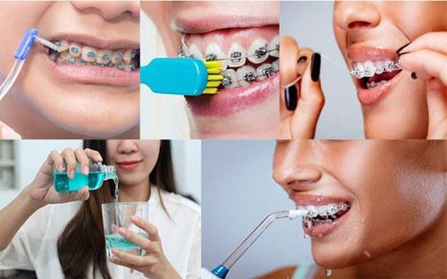 Vệ sinh răng niềng sạch sẽ đúng cách