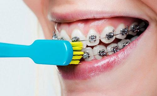 Vệ sinh răng niềng sạch sẽ mỗi ngày
