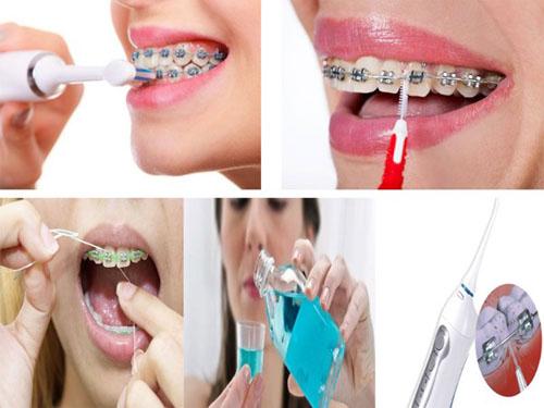Vệ sinh răng niềng sạch sẽ thường xuyên