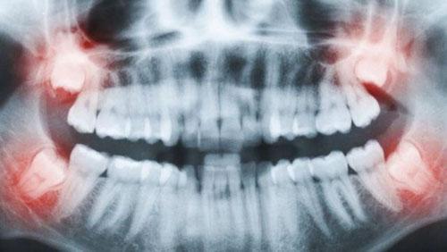 Vị trí các răng khôn mọc muộn đều ảnh hưởng xương hàm